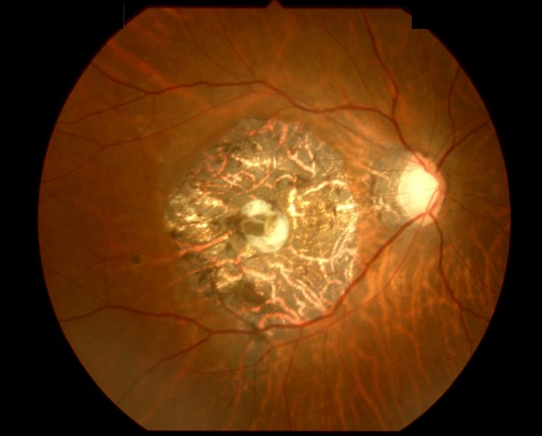 海老名市、大和市の加齢黄斑変性症の治療はみたに眼科クリニック