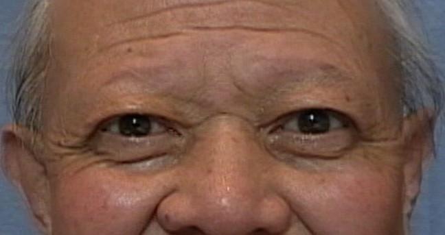 眼瞼下垂後