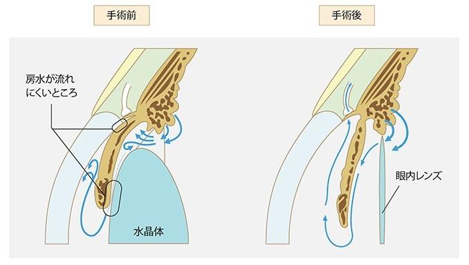 続発緑内障の白内障手術